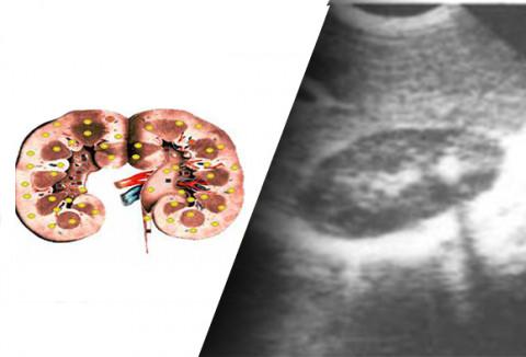 Ultrasound examination. Comparison of method between Sensitiv Imago and ultrasound examination